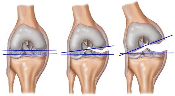 ростов коленного сустава