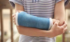 Как разработать после перелома лучевой кости руку в домашних условиях