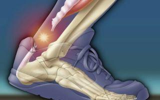 Терапия разрыва сухожилия