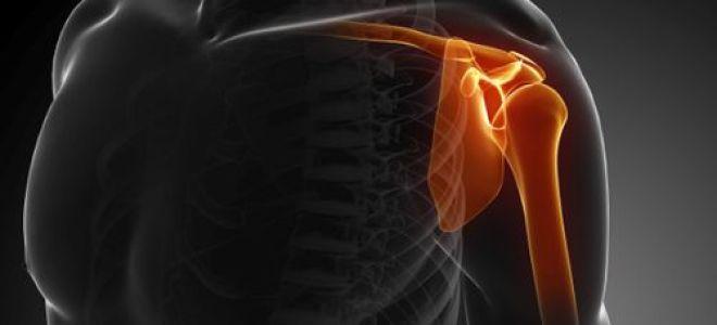 Как вправить плечо без посещения врача