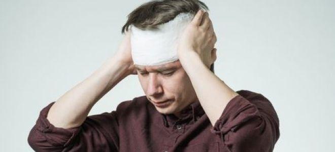 Основные признаки легкого сотрясения мозга