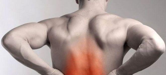 Как лечить растяжение мышц спины