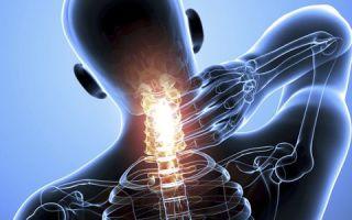 Ппервая помощь и лечение перелома шеи