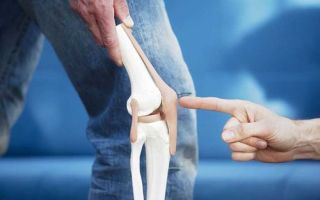 Перелом коленной чашечки – лечение, восстановление