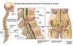 Лечение и последствия компрессионного перелома позвоночника поясничного отдела