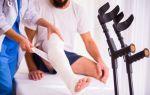 Симптомы перелома ноги, сколько заживает