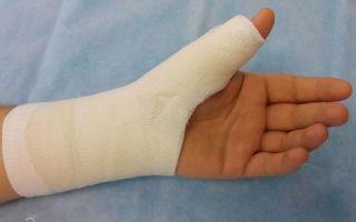 Диагностика и лечение разрыва сухожилия на пальце руки