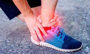 Растяжение связок – причины, симптомы, как долго лечить