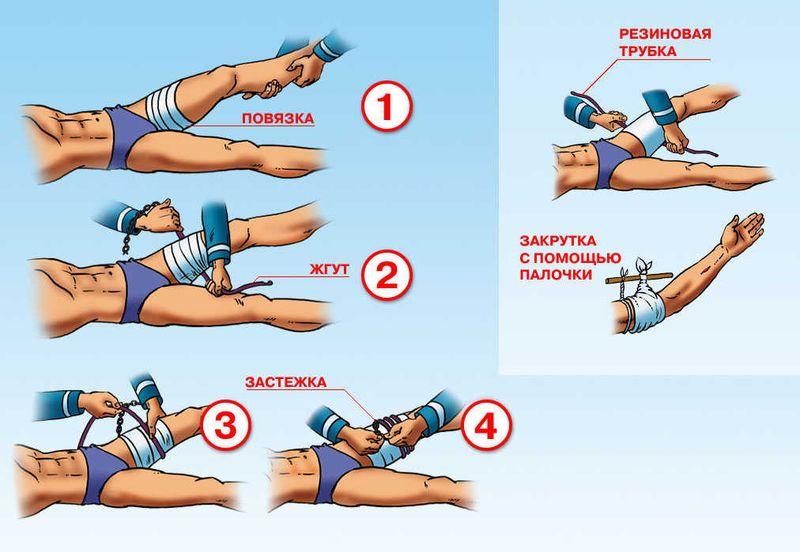 Первая помощь при переломе бедренной кости