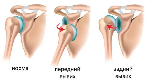 Пример переднего и заднего вывиха плеча