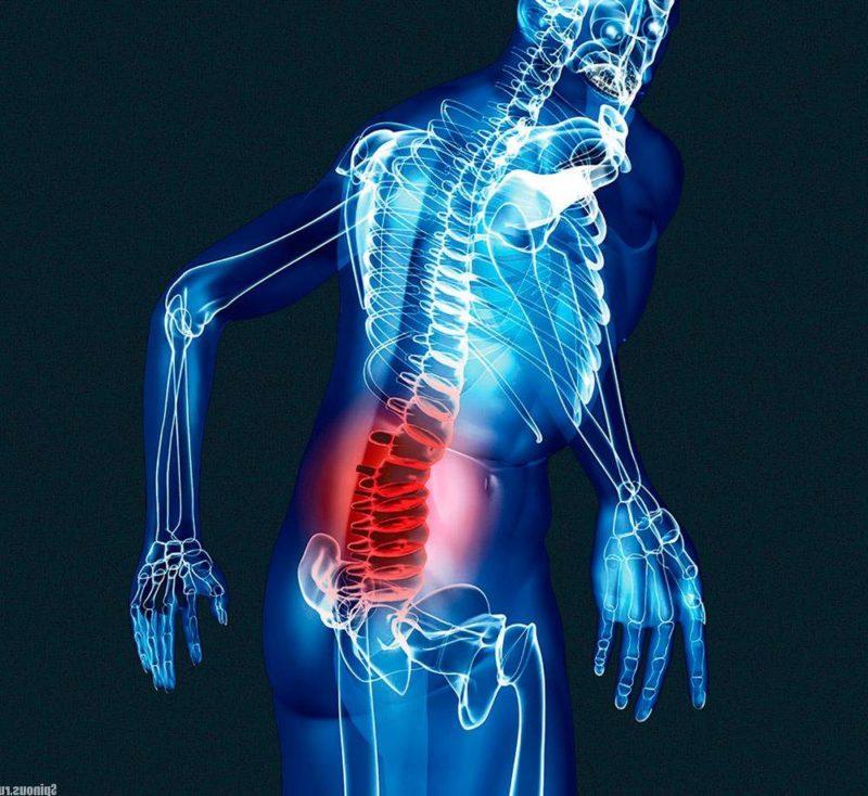 Компрессионный перелом позвоночника поясничного отдела лечение и реабилитация