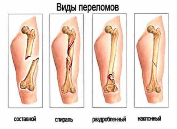 Что такое закрытый перелом его признаки и методы лечения