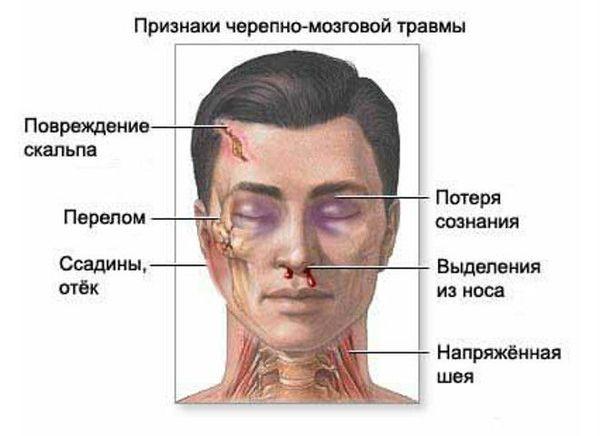 Признаки повреждения мозга