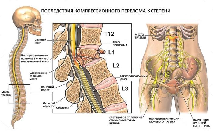 Перелом позвоночника 1 степени лечение и последствия