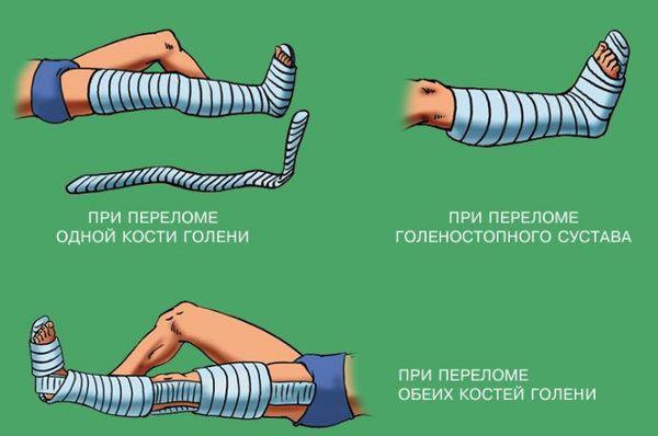 Правила наложения шины при переломе
