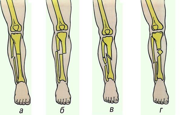 Виды перелома костей