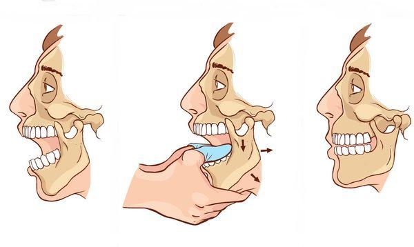 Изображение - Вывих нижнечелюстного сустава симптомы vyvih-chelyusti-2
