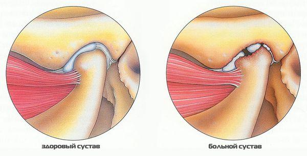Изображение - Вывих нижнечелюстного сустава симптомы vyvih-chelyusti-3