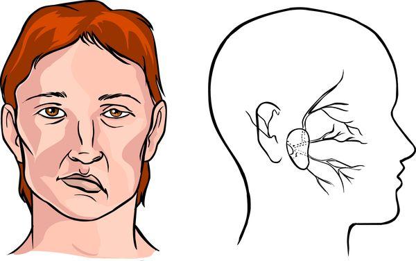Травма черепа с повреждением мозга