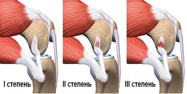 Степени растяжения связок коленного сустава