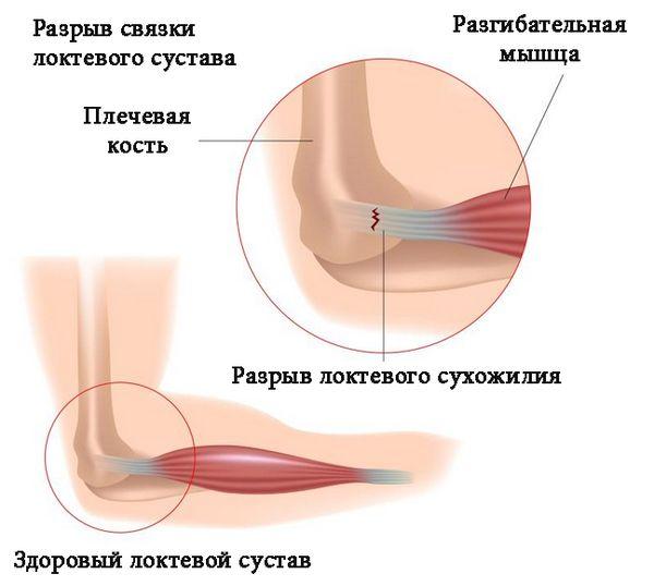 Разрыв связок кисти руки как лечить