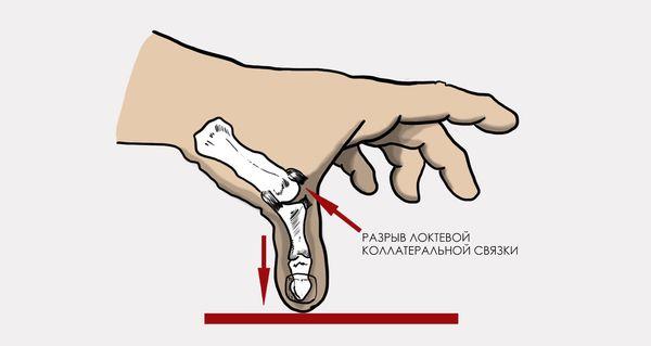 Повреждение связок большого пальца