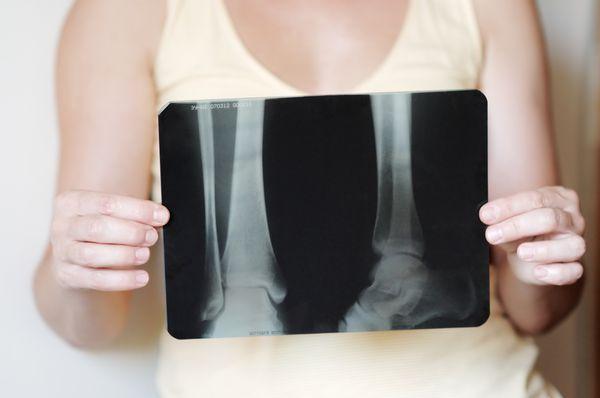 Рентгеновский снимок ноги