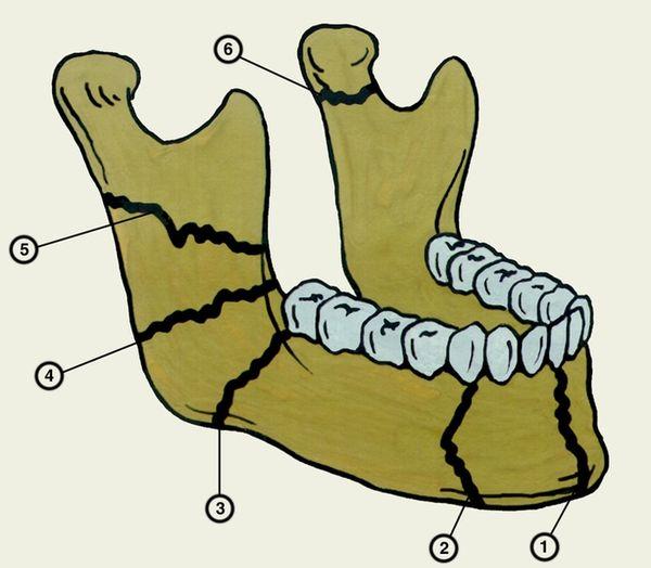 Анатомия челюсти