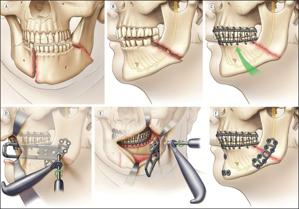 Повреждение челюсти