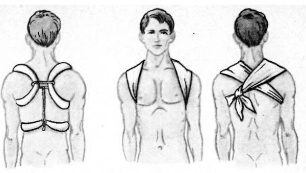 Иммобилизация при переломе ключицы ватно-марлевыми кольцами и косынкой