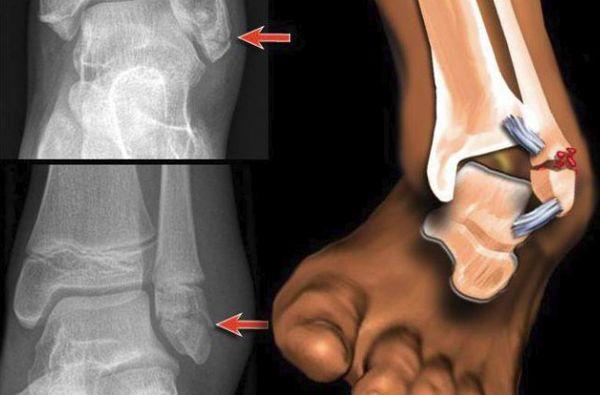 Рентгеновский снимок голеностопа