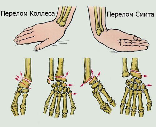 Повреждение костей рук