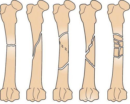 Виды диафизарных переломов бедренной кости