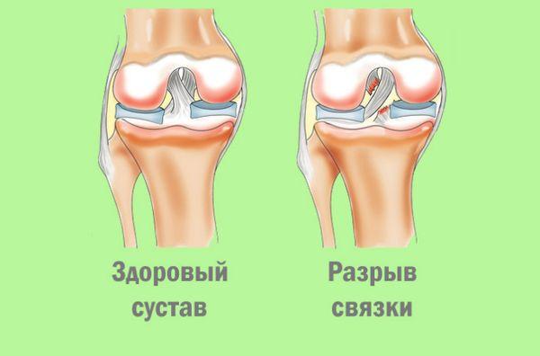 Здоровый сустав и с разрывом связки