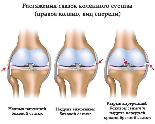 Травмы связочных тканей