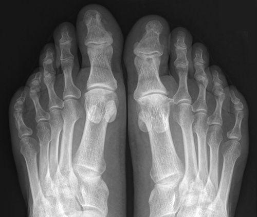 Рентгеновский снимок пальцев ног