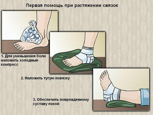 Первая помощь при травме стопы