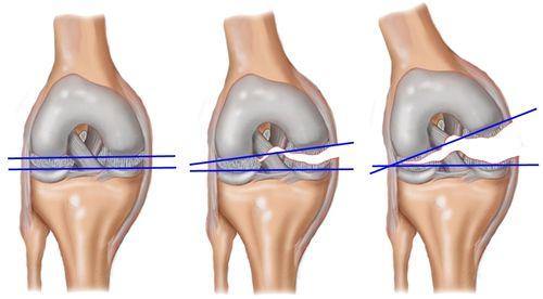 Типы повреждения связок коленного сустава