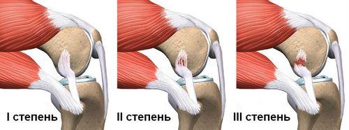 Степени повреждения связок коленного сустава