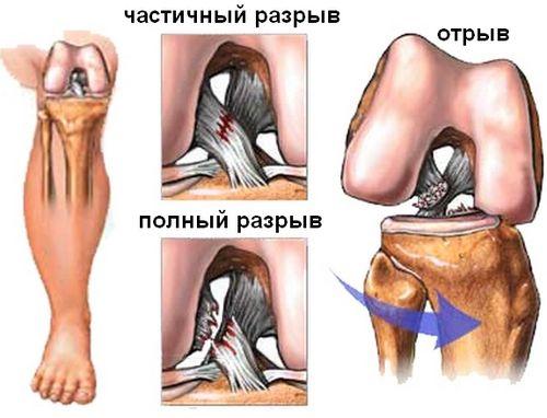 Виды повреждения связок колена