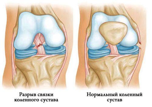 Классификация разрыва связок колена