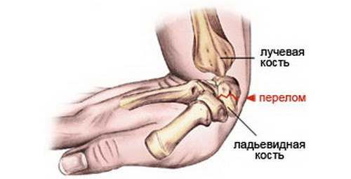 Повреждение лучевой кости