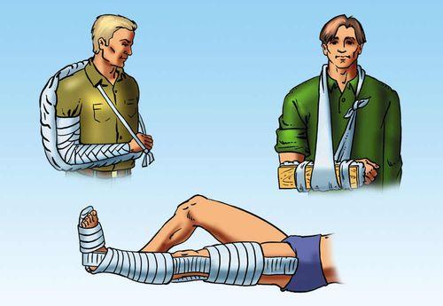 Иммобилизация нижней конечности проволочной шиной