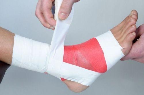 первая помощь при травме ноги