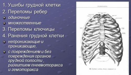 повреждение грудной клетки