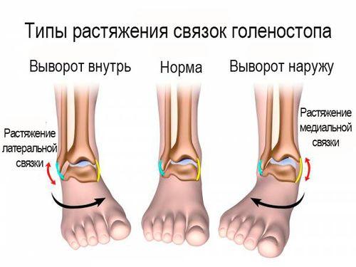 типы травмы ноги
