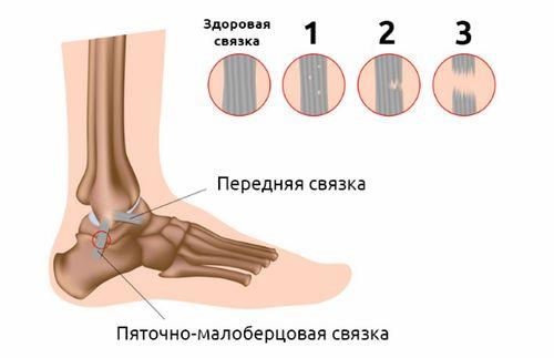 степени ушиба ноги