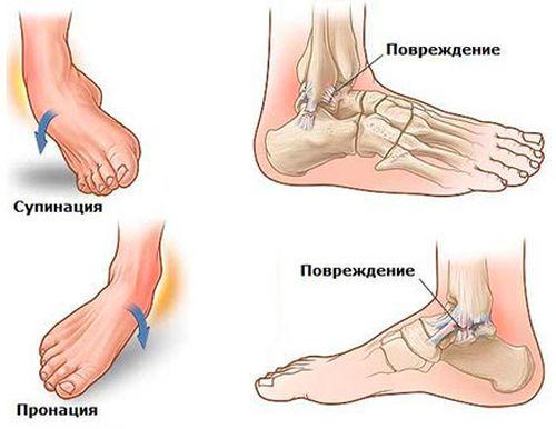 Что делать при растяжении мышц на ноге: симптомы травмирования, методики лечения. Что делать при возникновении растяжения мышц ноги?
