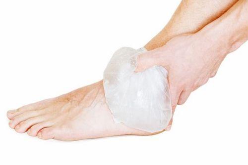Прикладывание льда к ноге