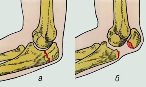 травма локтевого сустава